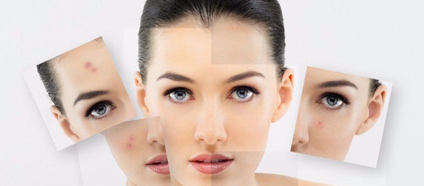 Conócete: tipos de piel