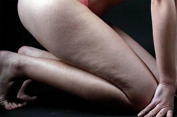 Celulitis | Foto: Lanzi