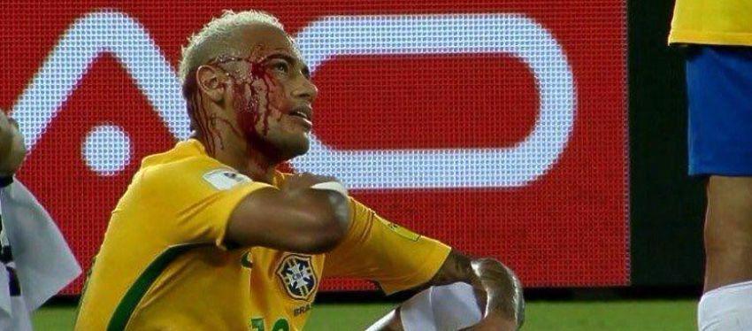 La aparatosa brecha que sufrió Neymar en el partido ante Bolivia. Foto: Twitter.