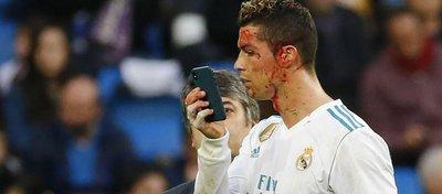Cristiano, en un accidentado partido con el Real Madrid. Foto: Eurosport.